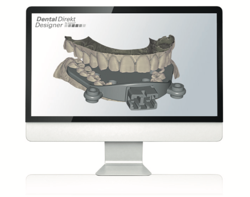 Dental Direkt Designer by exocad® :: Dentaldirekt